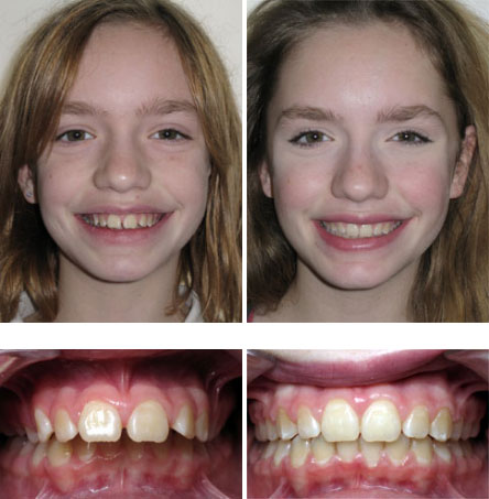 Smile Gallery Archive - Soleil Orthodonticts